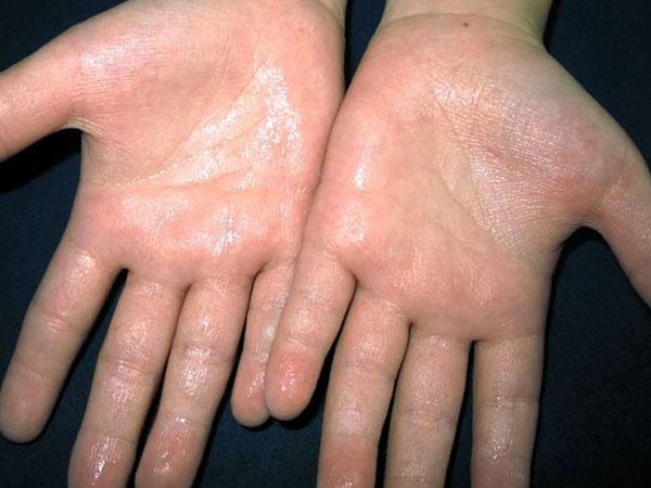 5 cách loại bỏ chứng ra mồ hôi tay chân vào mùa hè