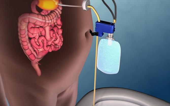 Giảm cân bằng thiết bị hút bớt thức ăn ra khỏi dạ dày, bạn có dám thử?