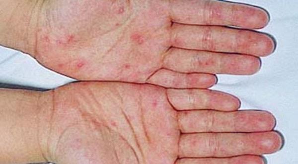 Trẻ nổi ban trên da những ngày đầu mắc bệnh
