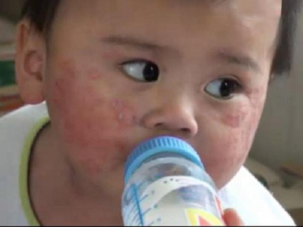 Nguyên nhân cách điều trị bệnh tay chân miệng ở trẻ