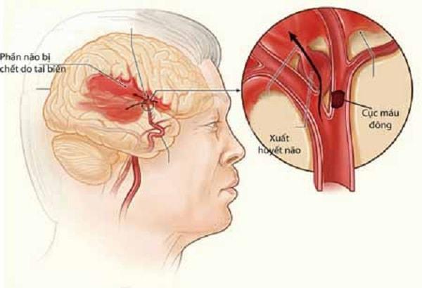 Những cơn đau đầu nguy hiểm mà bạn không nên bỏ qua 1