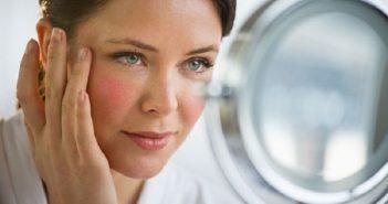 10 câu hỏi thường gặp về nám da, tàn nhang ở phụ nữ sau tuổi 30