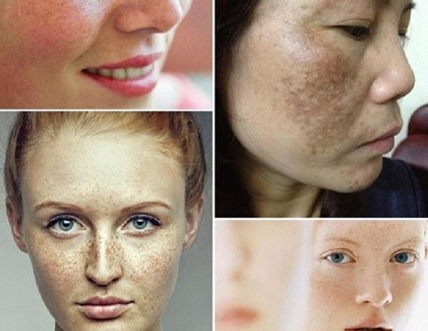 Nám da thường xuất hiện ở tuổi 25 đến 30