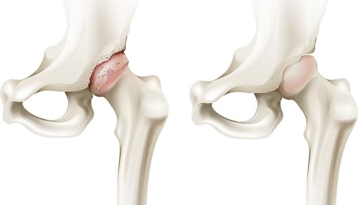 Thoái hóa khớp là trạng sụn và xương dưới sụn bị tổn thương
